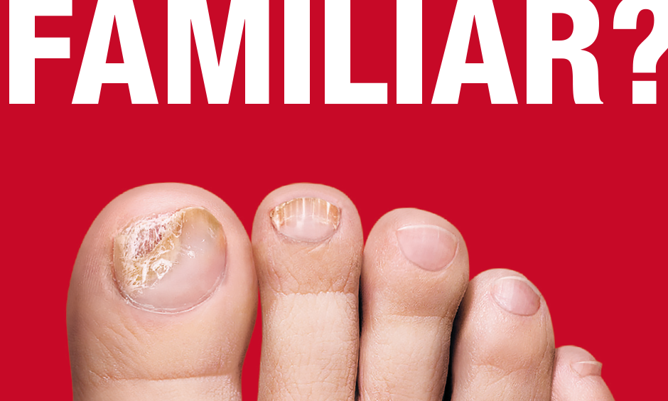 Valeant: Table Top Display: Show us your toenails!